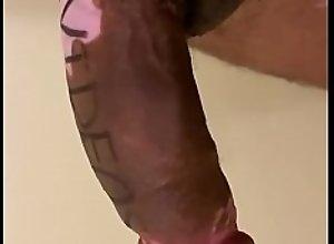 Vitiligo porn