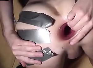 The beginn of my gaping asshole anal games 2010