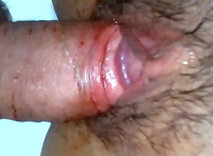 Man has a first time bloody sex with girl - a..